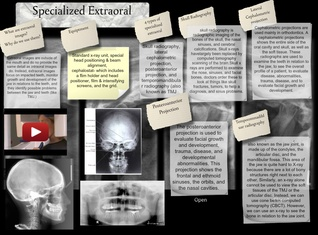 Specialized Extraoral